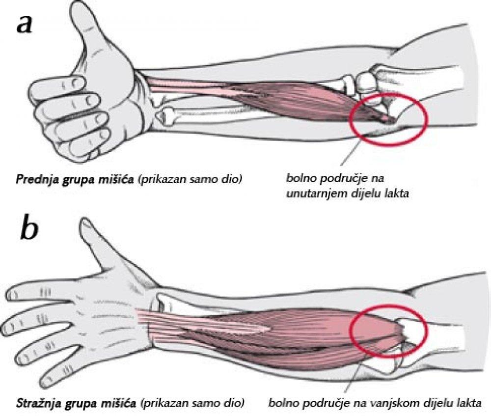 cauze amorteala degete maini